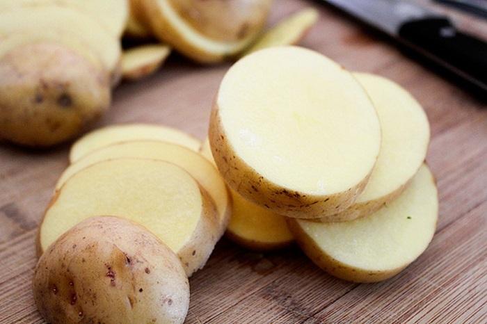 Mẹo chữa vết bỏng bằng nguyên liệu có sẵn trong nhà bếp-2