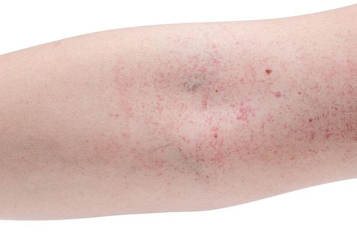 Phòng bệnh sốt xuất huyết như thế nào cho hiệu quả-2