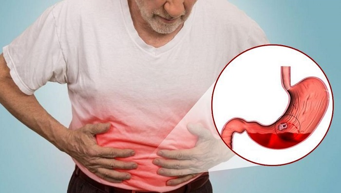 Chế độ ăn tốt nhất dành cho người bị xuất huyết tiêu hóa-5